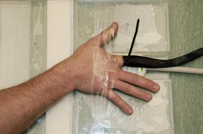 Mri Glove Captures Clear Images Of Hand Anatomy The Hindu