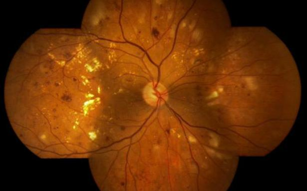 How artificial intelligence can aid eye testing